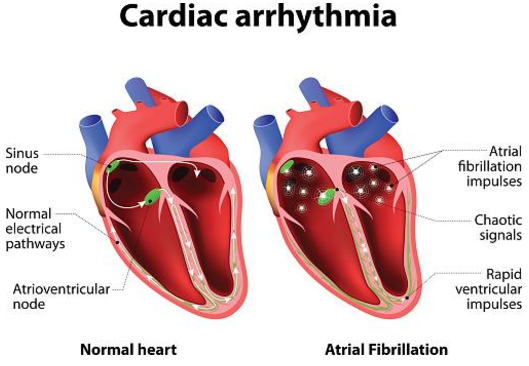 Cardiac Arrythmia